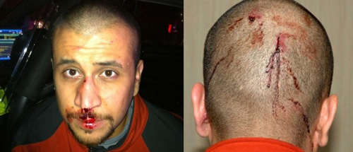 Zimmerman's head wounds