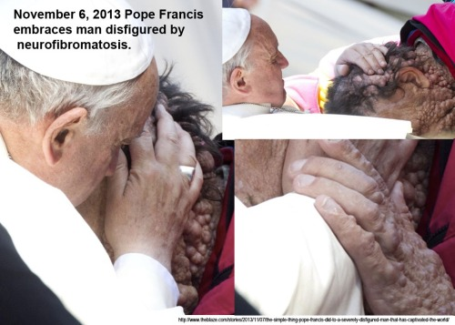 2013_11 06 Pope Francis embraces disfigured man