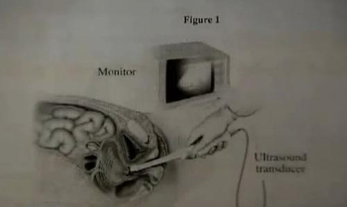 Transvaginal probe