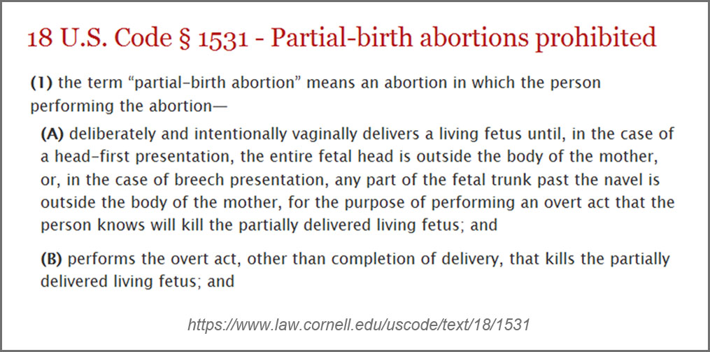 partial birth abortion and federalism Why partial abortion should not be legalized if abortion is banned in the us from busi onlin 561 at coastal carolina university.