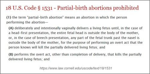 Law re partial birth abortion