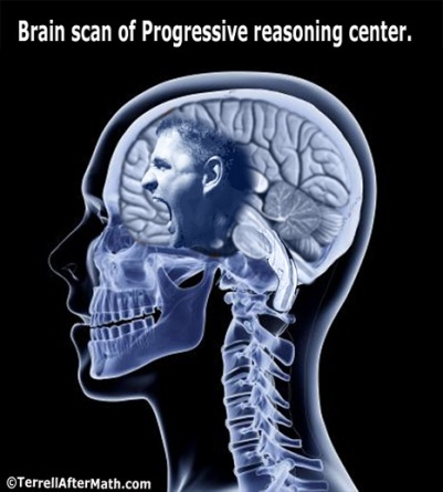 2018_07 18 Brain scan of Prog by Terrell