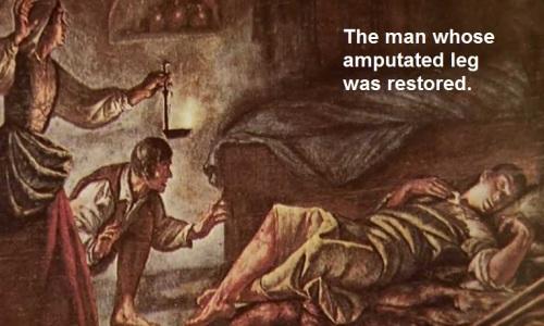 Amputee healed